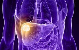 Il tumore al fegato